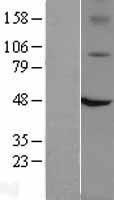 NBL1-17340 - TRPV1 Lysate