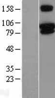 NBL1-17342 - TRPV3 Lysate