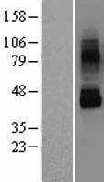 NBL1-17345 - TRPV6 Lysate