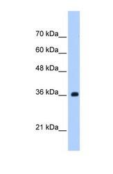 NBP1-57445 - TRSPAP1 / TRNAU1AP