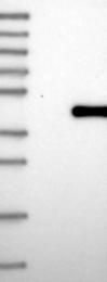 NBP1-92536 - TRSPAP1 / TRNAU1AP