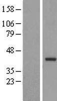 NBL1-17348 - TRUB2 Lysate