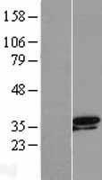 NBL1-17356 - TSEN34 Lysate