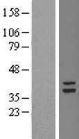 NBL1-17357 - TSFM Lysate