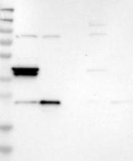 NBP1-89839 - RSPH1 / TSGA2