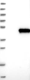 NBP1-89840 - RSPH1 / TSGA2