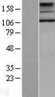 NBL1-17361 - TSH Receptor Lysate