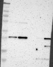 NBP1-81001 - Tetraspanin-13 (TSPAN13)