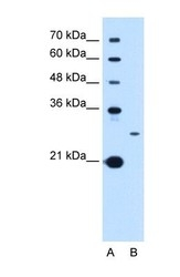 NBP1-69340 - Tetraspanin-15 (TSPAN15)