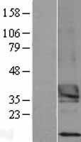 NBL1-17369 - TSPAN15 Lysate