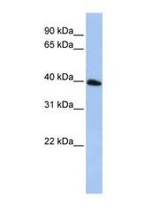 NBP1-59770 - Tetraspanin-17 (TSPAN17)
