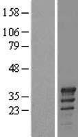 NBL1-17385 - TSPY2 Lysate