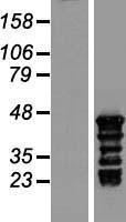 NBL1-12626 - TSPY3 Lysate