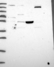 NBP1-92541 - TSPYL4