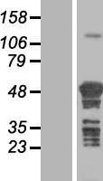 NBL1-17388 - TSPYL4 Lysate
