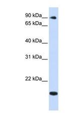NBP1-55349 - TSR1