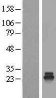 NBL1-17390 - TSR2 Lysate