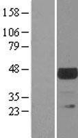 NBL1-17393 - TSSK1 Lysate