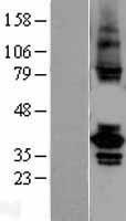 NBL1-17394 - TSSK2 Lysate
