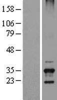 NBL1-17395 - TSSK6 Lysate