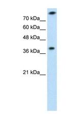 NBP1-54682 - Thiosulfate sulfurtransferase (TST)