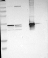 NBP1-87147 - Thiosulfate sulfurtransferase (TST)