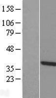 NBL1-17397 - TTC1 Lysate