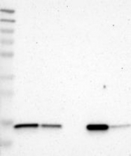 NBP1-85664 - FIS1 / TTC11
