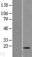 NBL1-10727 - TTC11 Lysate