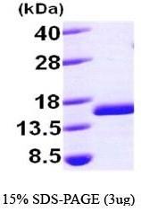 NBP1-44386 - FIS1 / TTC11