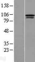NBL1-17398 - TTC14 Lysate