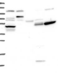 NBP1-83718 - TTC23