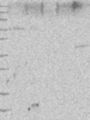 NBP1-84035 - TTC26