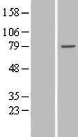 NBL1-17406 - TTC30B Lysate