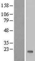 NBL1-17407 - TTC32 Lysate