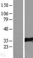 NBL1-17408 - TTC33 Lysate