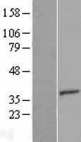 NBL1-17409 - TTC35 Lysate