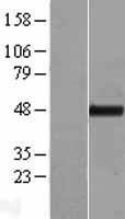 NBL1-17411 - TTC4 Lysate