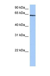 NBP1-54927 - TTC6