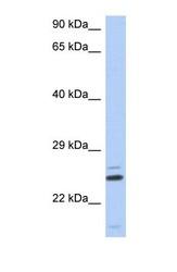 NBP1-55306 - TTC9C