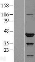 NBL1-17416 - TTL Lysate