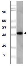 NBP1-47360 - ASPSCR1