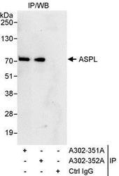 NBP1-28709 - ASPSCR1