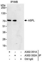 NBP1-28710 - ASPSCR1