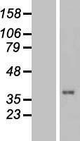 NBL1-17455 - TUSC3 Lysate