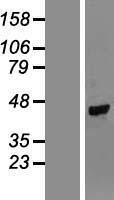 NBL1-17456 - TUSC4 Lysate