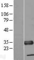 NBL1-17463 - TXNDC Lysate