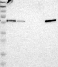 NBP1-92550 - TXNDC10 / TMX3