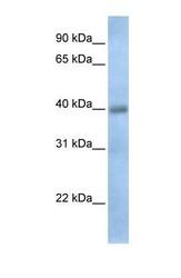 NBP1-69614 - TXNDC15