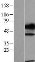 NBL1-17468 - TXNDC15 Lysate